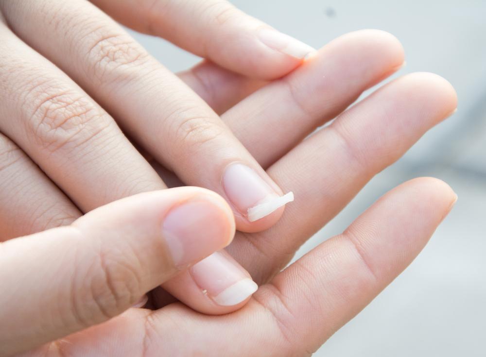 Le manicure molto aggressive sono una delle cause principali delle unghie che si spezzano