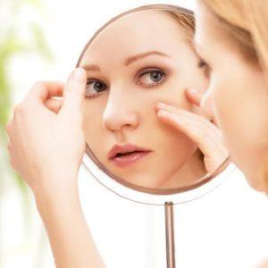 acne rimedi