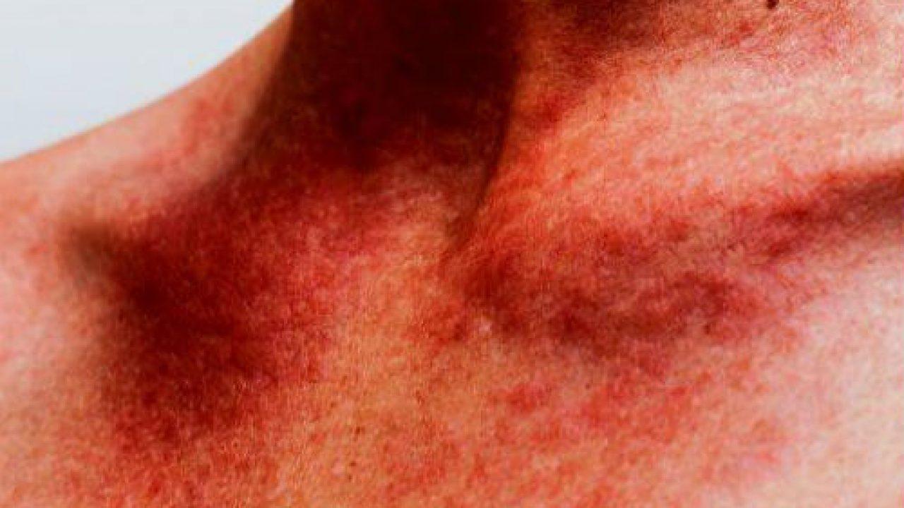 macchie rosse in faccia allergia