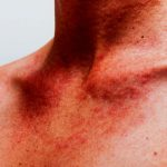 Puntini rossi sul petto: i migliori consigli del Dermatologo Antonino Di Pietro dell'Istituto Dermoclinico Vita Cutis di Milano