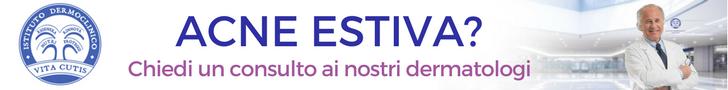 Acne estiva: consulto online del migliore dermatologo a Milano all'Istituto Dermoclinico Vita Cutis Plinio