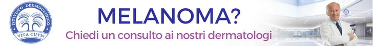 Melanoma: consulto online del migliore dermatologo a Milano all'Istituto Dermoclinico Vita Cutis Plinio