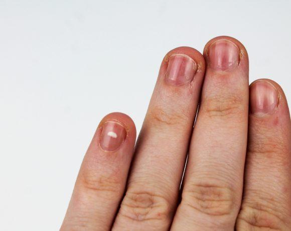 La fragilità delle unghie è dovuta a causa ambientali e personali: ecco quali e come evitare le abitudini scorrette