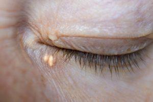 Gli xantelasmi sono accumuli di colesterolo sulla pelle