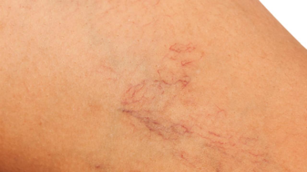 cause di fragilità capillare