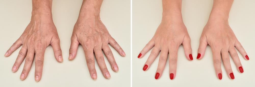 Creme e trattamenti mirati possono ridurre i segni dell'invecchiamento cutaneo sulle mani