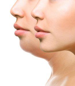 Alcune nuove tecniche non invasive hanno effetti molto positivi sul doppio mento