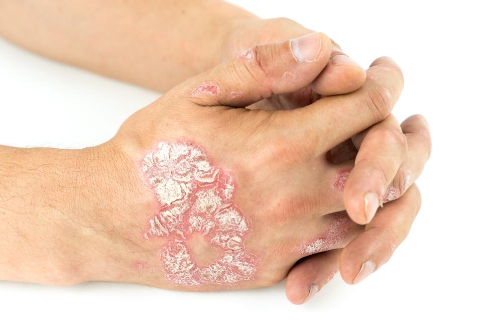 A prescindere dalla zona in cui si manifesta, la psoriasi si riconosce dalle macchie di pelle più chiara e secca