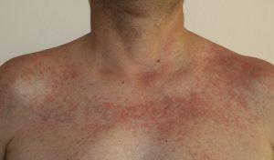 La fotodermatite può essere attenuata con qualche rimedio consigliato dal dermatologo