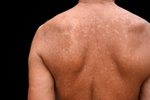 prurito macchie viola sulla pelle