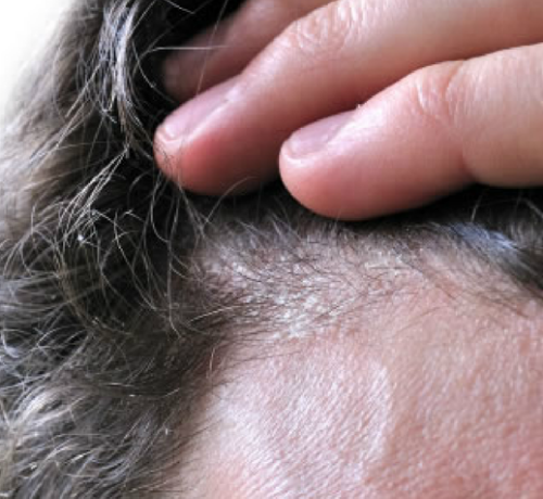 Dermatite seborroica: rimedi