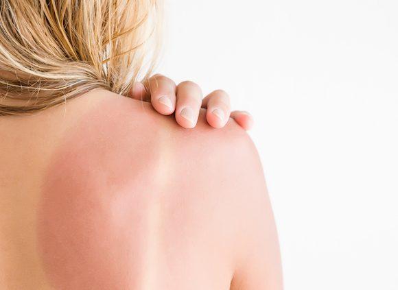 Cause e rimedi dell'eritema solare