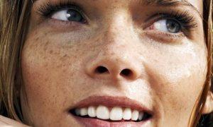 Le macchie solari: quali creme antimacchie possono essere efficaci per il viso?