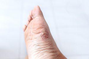 Ciò che provoca un dolore bruciante sulla parte superiore del piede, morbo...
