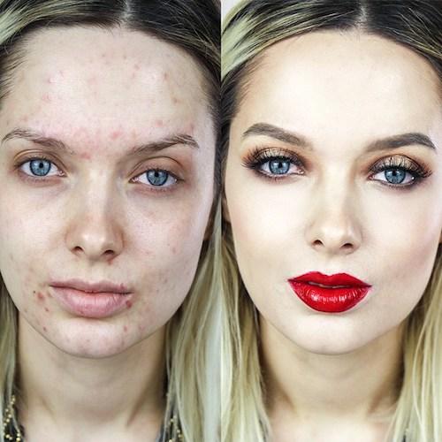 Il caso Emma Ford: quando l'acne diventa social.