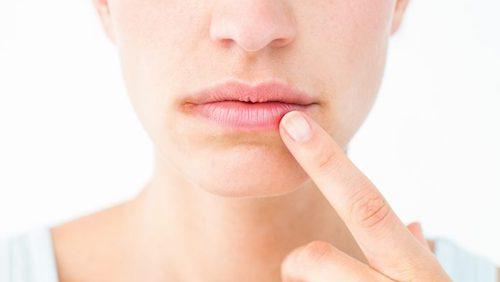 Pelle secca vicino alle labbra: può essere dermatite atopica?