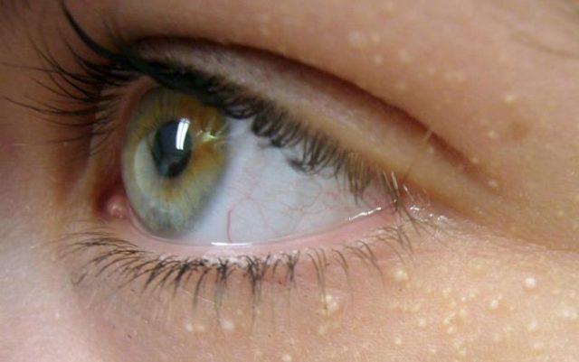 grani di miglio occhi: cosa sono?