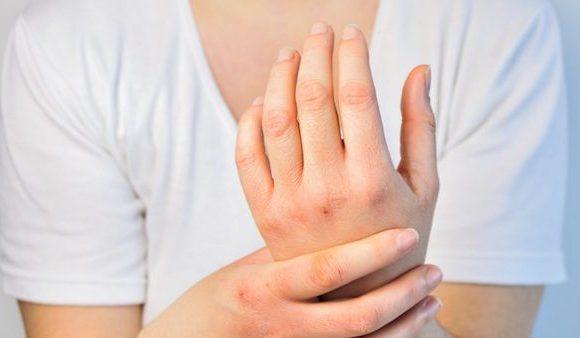Come curare le ragadi di mani e piedi.