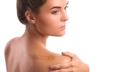 cicatrici cheloidi da piercing