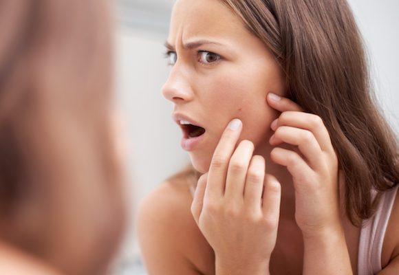 I consigli del dermatologo per ridurre l'acne ormonale grazie all'assunzione della pillola.