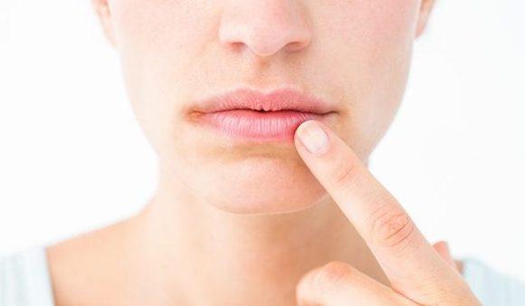 Consigli per prevenire le ragadi sulla labbra