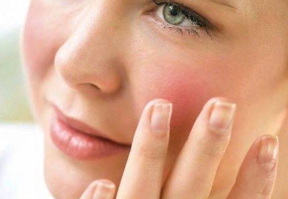 Le cause delle guance rosse sul viso