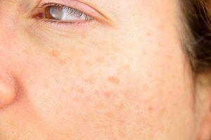 Macchie di invecchiamento sulla pelle matura