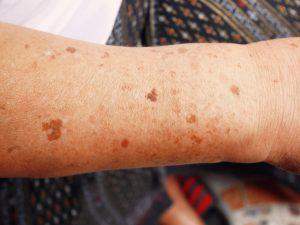 Macchie scure sulla pelle da eccesso di melanina