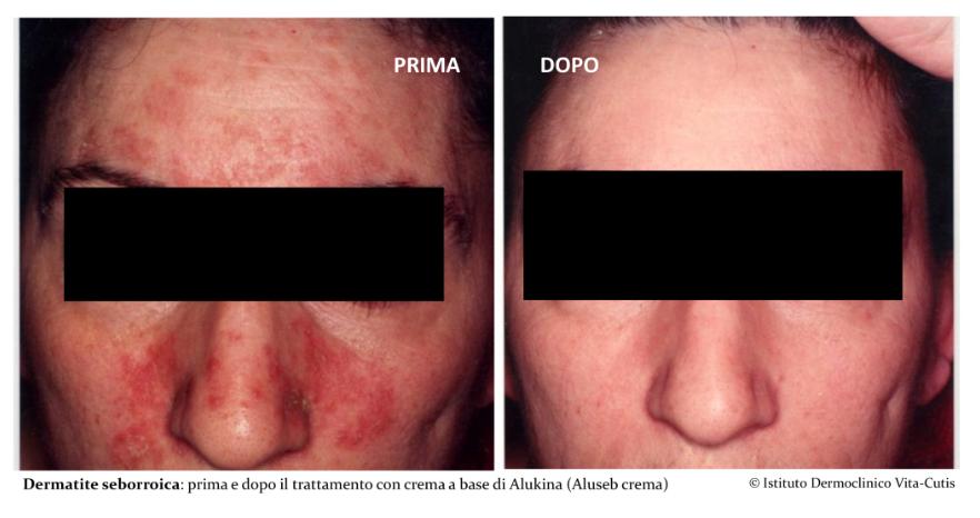Rimedi dermatite seborroica: l'efficacia della crema con Alukina
