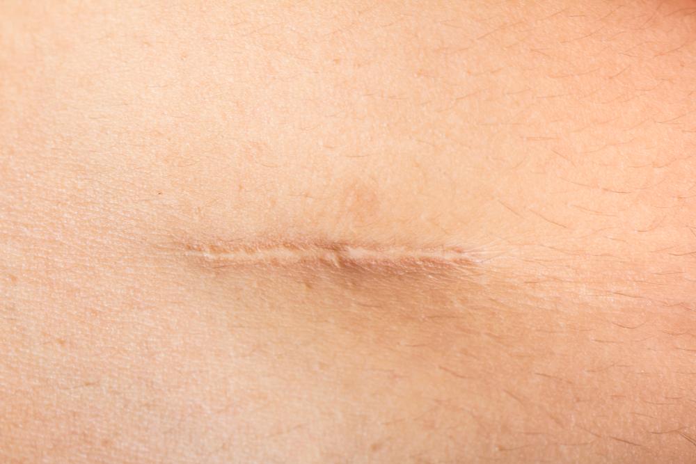 I cheloidi sono conseguenze comuni di operazioni chirurgiche o altri grossi traumi della pelle