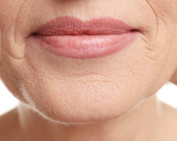 Da cosa sono provocate e come attenuare le rughe ai lati della bocca