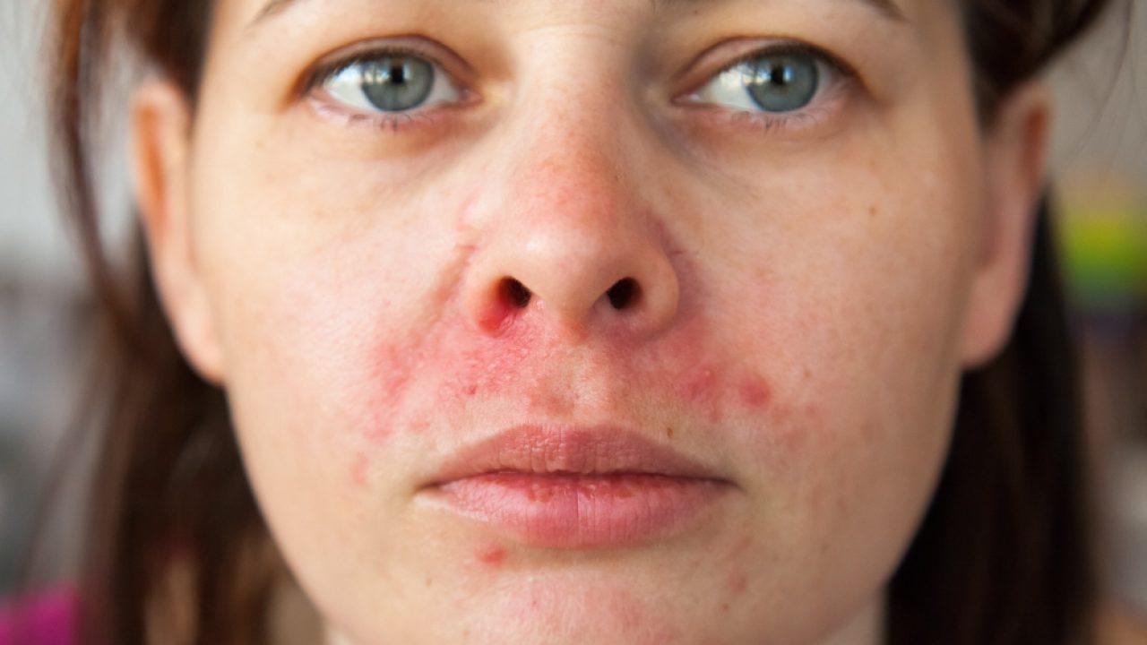 allergia intorno alla bocca