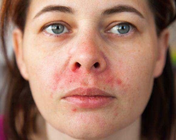 In inverno è facile sviluppare forme di dermatite periorale: ecco da cosa dipendono e come curarle