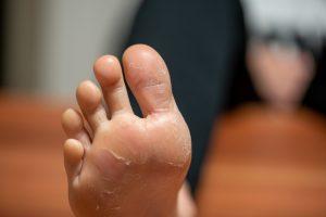 Sudorazione e continue immersioni in acqua possono causare eczemi disidrosici sui piedi