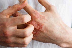 Cause e rimedi dell'eczema disidrosico