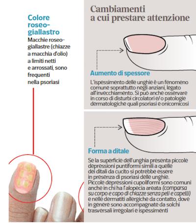 Come riconoscere la psoriasi alle unghie: risponde il dermatologo Antonino Di Pietro sul Corriere della Sera.