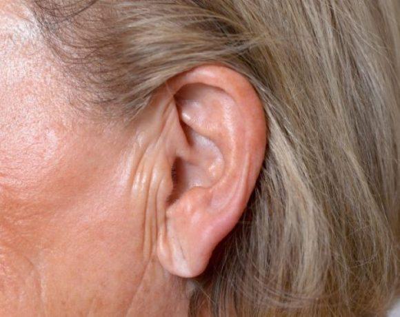 Come si formano le rughe delle orecchie