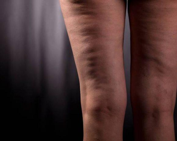 Come prevenire la cellulite: i consigli del dermatologo