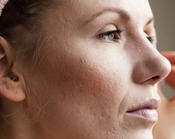 Quali sono le differenze tra acne tardiva e giovanile? Risponde il professore Di Pietro Donna Moderna