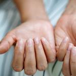 Unghie trasparenti: quali sono le cause e i rimedi