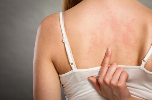 L'eczema può dipendere anche dallo stress
