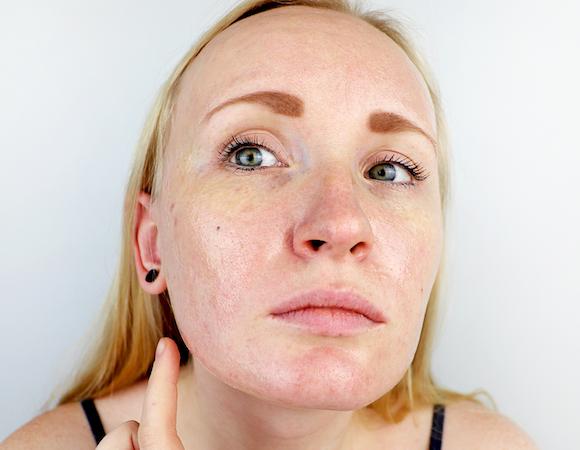 Esistono dei rimedi naturali per pelle mista e grassa?