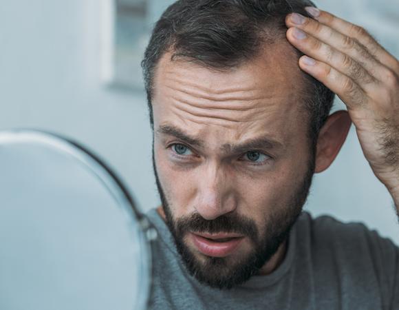 È vero che il coronavirus può incentivare la perdita di capelli?
