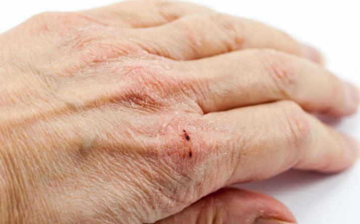 Come trattare la pelle della mani con ragadi